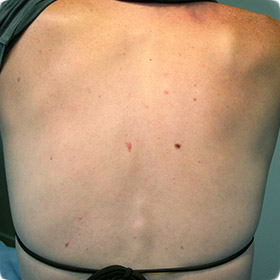 A back with moles