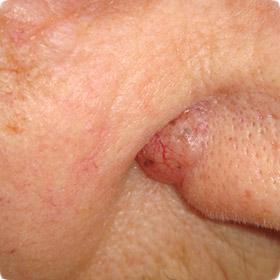 BCC, Basal Cell Carcinoma, BCC Skin Cancer, Skin Cancer ...