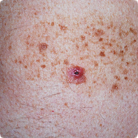 Melanoma can occur in pre-existing moles